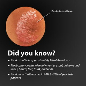 psoriasis-s12a-did-you-know