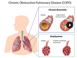COPD Shared By Professional Village Compounding Pharmacy Sacramento
