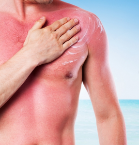 Sunburn shared by Professional Village Compounding Pharmacy Sacramento